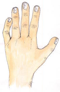 Why is my pinky finger bent? (camptodactyly) Clinodactyly01
